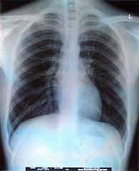 """Chest X-ray"" by Aidan Jones"